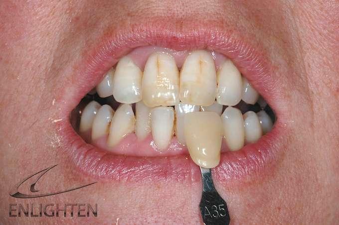 Enlighten Teeth Whitening Kendal Case Studies 1