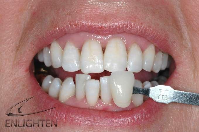 Enlighten Teeth Whitening Kendal Case Studies 1a