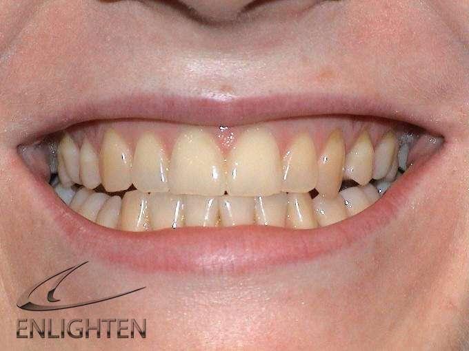Enlighten Teeth Whitening Kendal Cumbria Case Studies 2