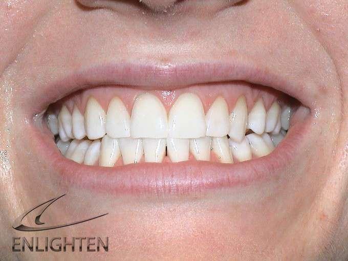 Enlighten Teeth Whitening Kendal Cumbria Case Studies 2a
