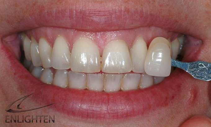 Enlighten Teeth Whitening Kendal Cumbria Case Studies 3