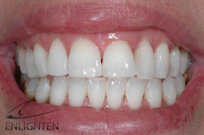 Enlighten Teeth Whitening Kendal Cumbria Case Studies 3b
